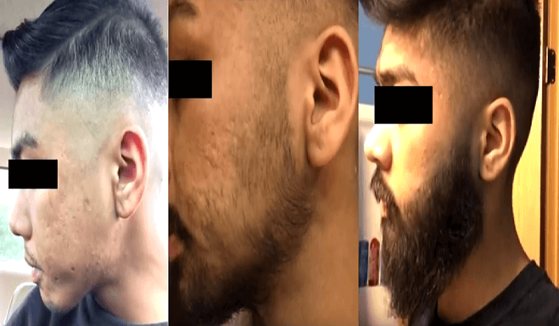 Minoxidil Before and After Beard Growth Transformation (2)