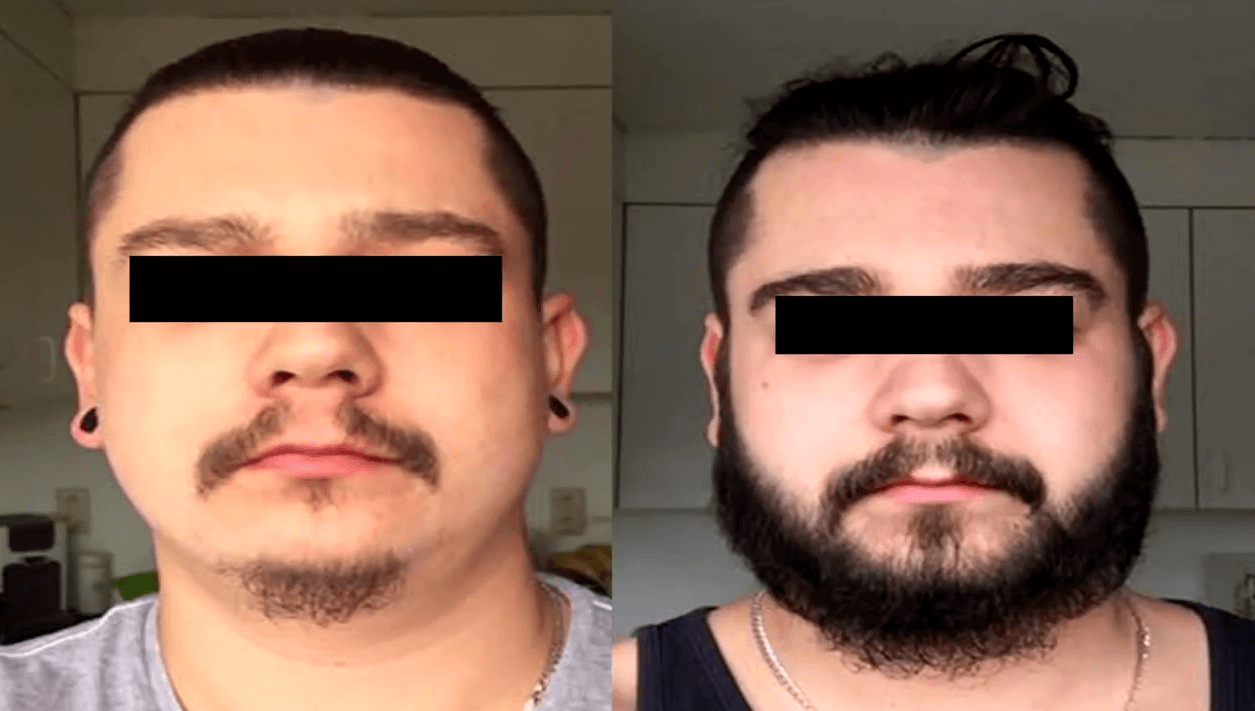 Minoxidil Before and After Beard Growth Transformation (3)