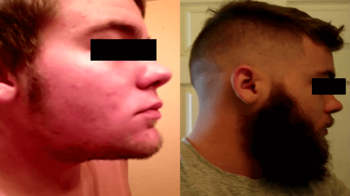 Minoxidil Before and After Beard Growth Transformation (4)