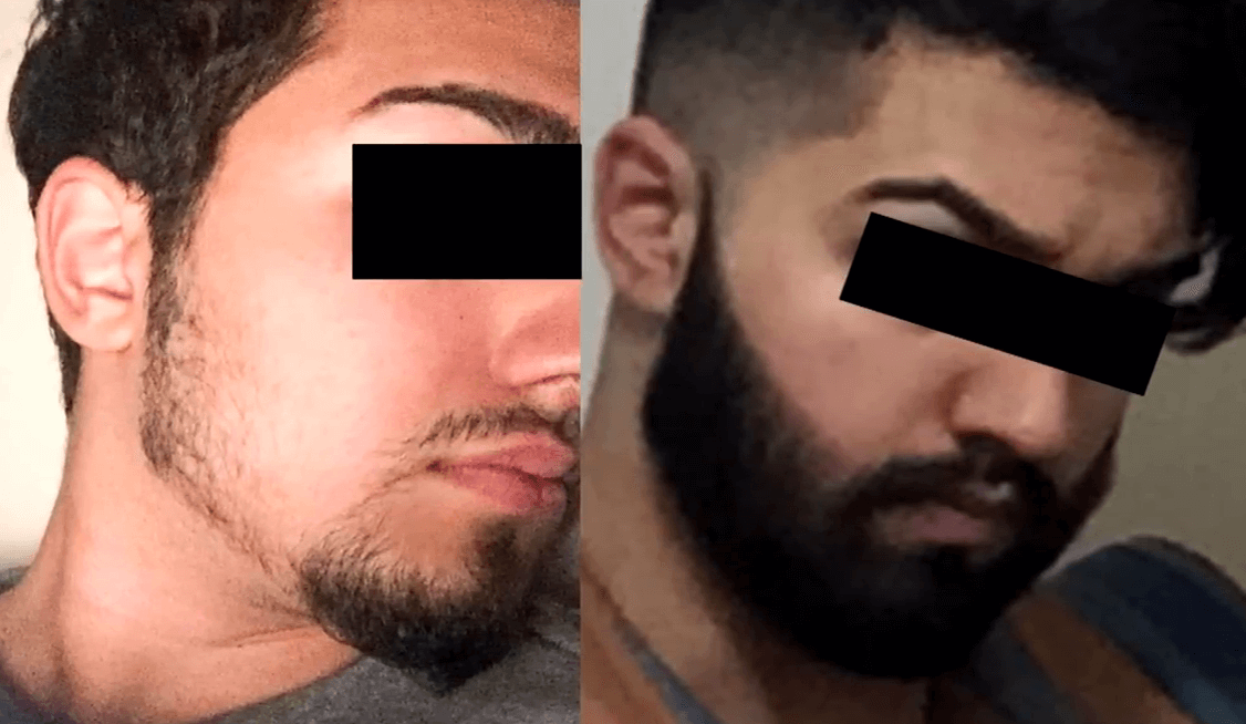 Minoxidil Before and After Beard Growth Transformation (5)