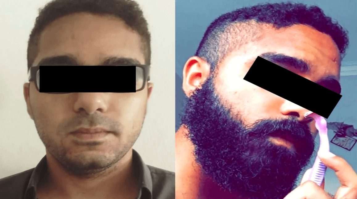 Minoxidil Before and After Beard Growth Transformation (6)