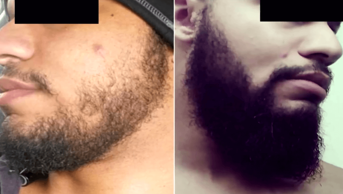 Minoxidil Before and After Beard Growth Transformation (7)